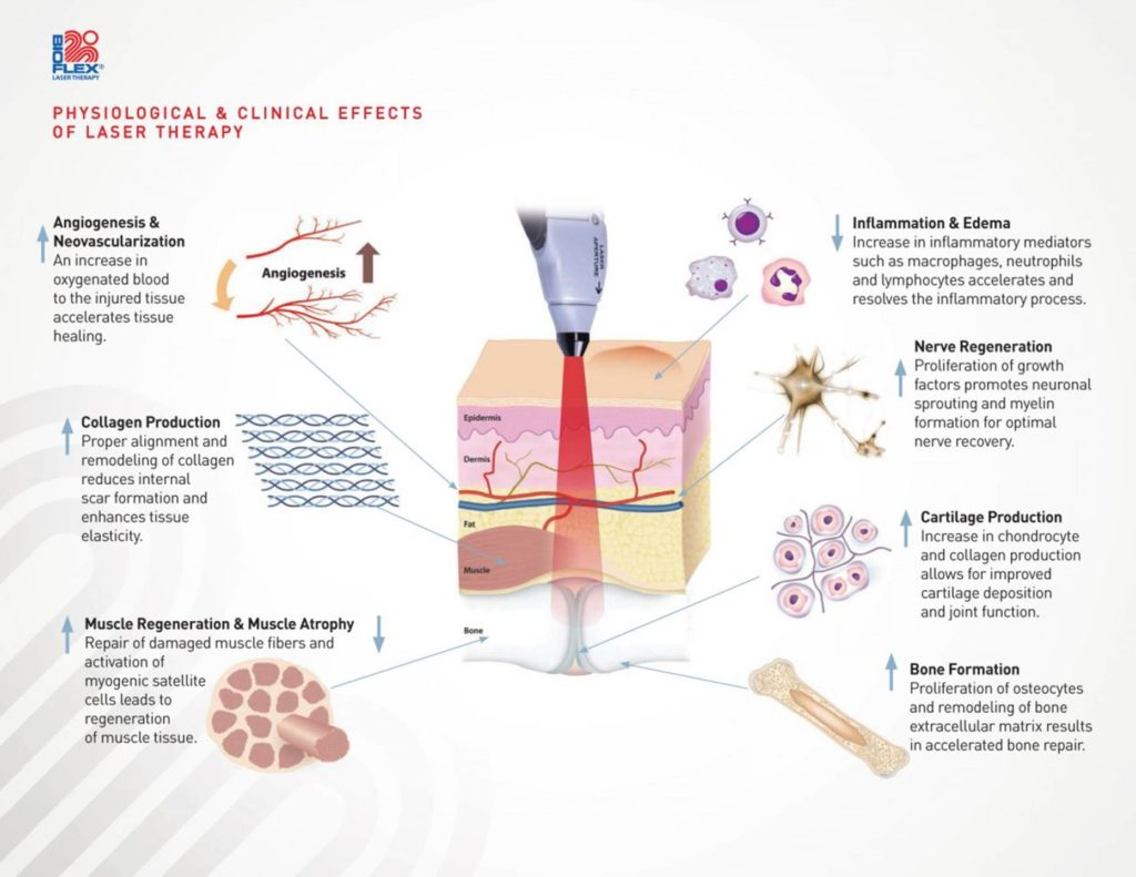 Elements Massage Therapy - Bioflex Laser Therapy& Spa